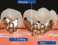 ibraces diagram